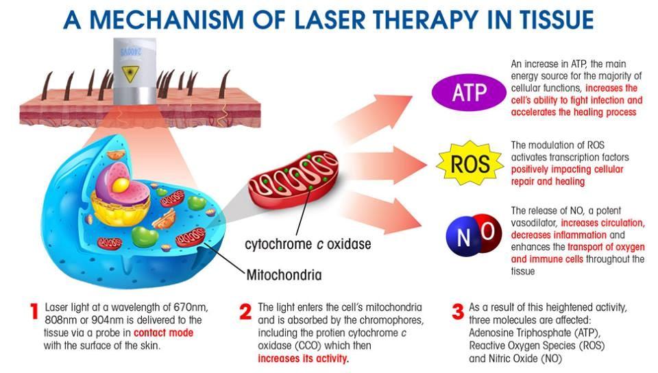 lllt laser for sale