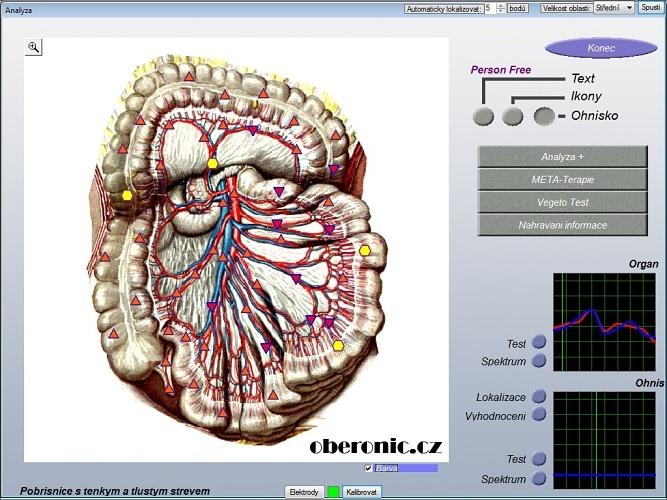 9d nls quantum health analyzer